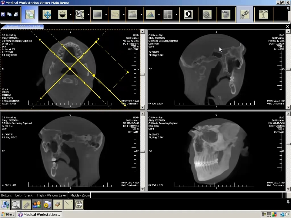 LEADTOOLS Medical Imaging Developer Toolkit预览:LEADTOOLS Medical Imaging Developer Toolkit 03