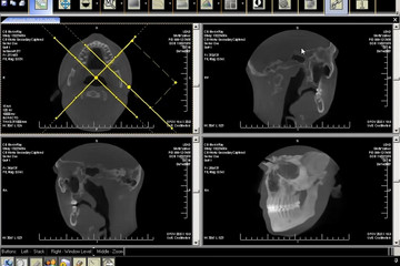 LEADTOOLS Medical Imaging Developer Toolkit预览:LEADTOOLS Medical Imaging Developer Toolkit 03