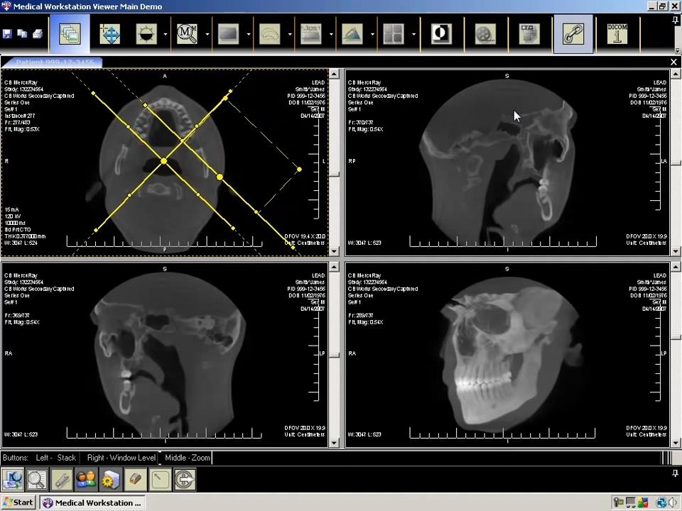 LEADTOOLS Medical Imaging Developer Toolkit 03